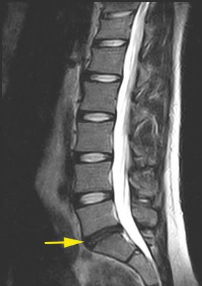 Bandscheibenvorfall: Symptome und Behandlung der Bandscheibe ...