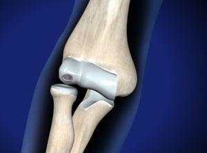 При рассекающем остеохондрите (Болезнь Кёнига) в локтевом суставе отделяется небольшой костно-хрящевой участок, вследствие чего образуется свободное суставное тело (суставная мышь), способное блокировать сустав.  © Viewmedica