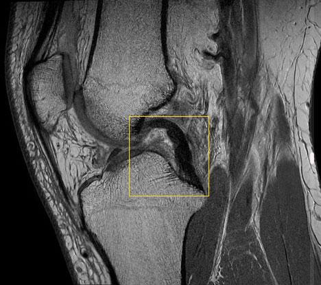 Kreuzbandriss: Ruptur des Kreuzbandes im Knie | Gelenk-Klinik de