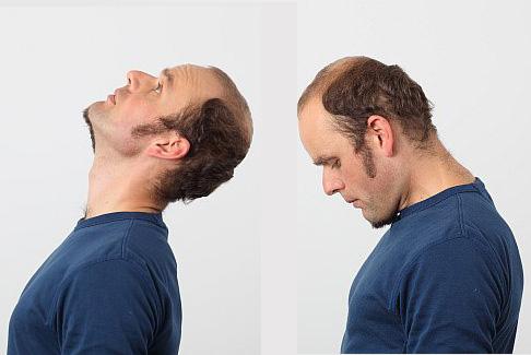 Nackenschmerzen Gelenk Klinikde