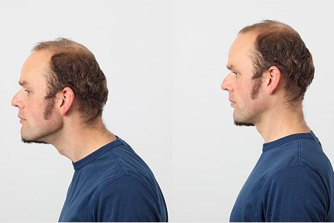 Übungen gegen Nackenschmerzen - Schmerzen der Halswirbelsäule ...