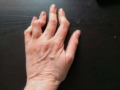 Behandlungsmöglichkeiten von Osteoarthritis