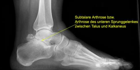 Arthrose Im Unteren Sprunggelenk Gelenk Klinikde