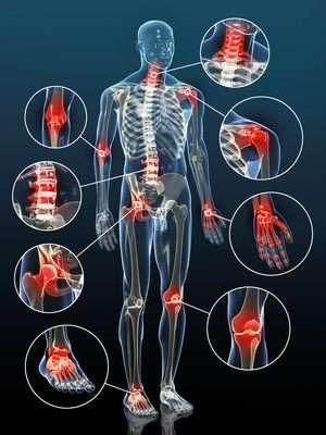 Erkrankungen der Gelenke der unteren Extremitäten und deren Behandlung