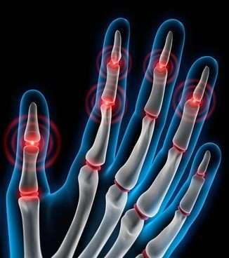 Schmerzen in den handballen