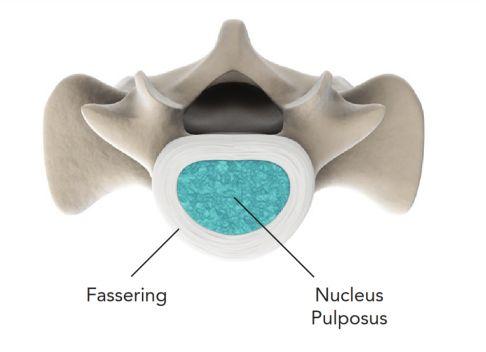 Bandscheibenprothese: Bewegliche Wirbelsäule trotz ...
