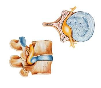 Bandscheibenvorfall Symptome Und Behandlung Der Bandscheibe