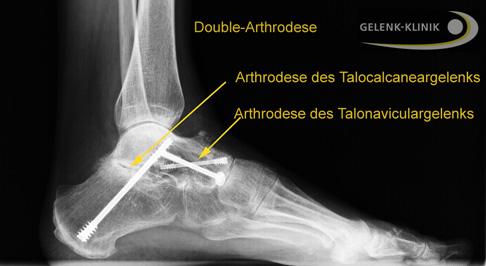 Triple-Arthrodese: Versteifung (Arthrodese) des unteren ...