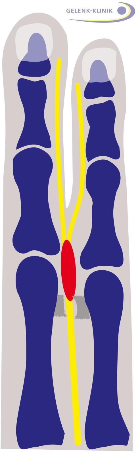 Morton Neurom: Mittelfuß-Schmerzen ohne Nervenamputation behandeln ...