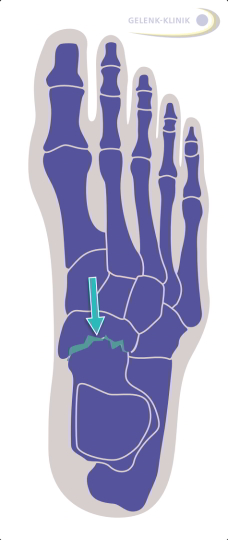 Die Operation des talonavikularen Gelenks (Gelenk zwischen Sprungbein und Kahnbein) kann das Fußlängsgewölbe wieder aufrichten. © Dr. Thomas Schneider