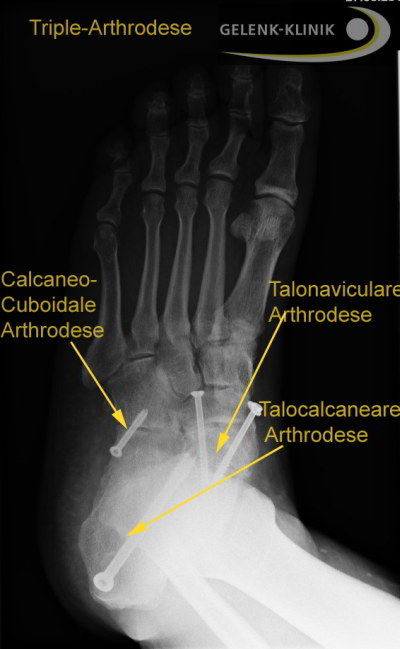 Frakturen und Luxationen im Bereich der Sprunggelenke, Band- und Achillessehnenverletzungen