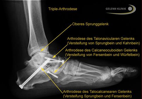 Der rheumatische Fuß