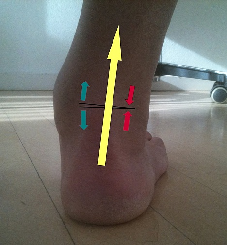 The defective position of the ankle is also visible from outside. Also shown in yellow is the altered direction of movement of the Achilles tendon. This strongest tendon in the human body intensifies the defective position by deviating from the static stress axis.