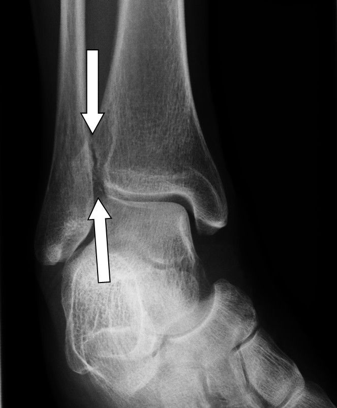 Defective position of the talar mortise results in hyper flexibility of the ankle. The arrows show the missing congruence between the shin (tibia) and calf bone (fibula) following a syndesmosis rupture.