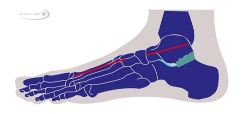 Arthrose im Sprunggelenk & Schmerzen beim Auftreten