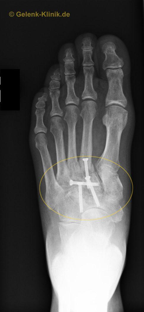 Gelenkverschleiß in der Fußwurzel