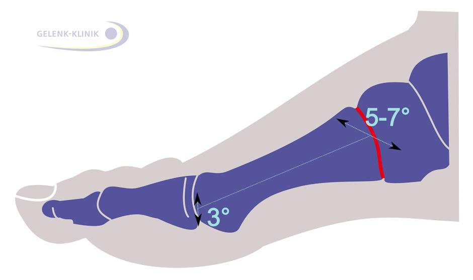 Fußwurzelarthrose (Arthrose des Lisfranc-Gelenks) | Gelenk-Klinik.de