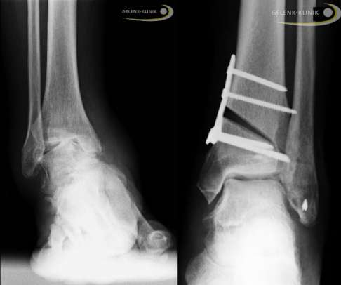 Osteoarthritis Of The Ankle Methods For Joint Preservation Joint