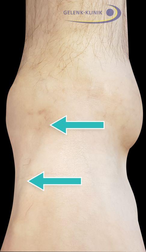 Weichteilrheuma in Muskeln und Sehnen