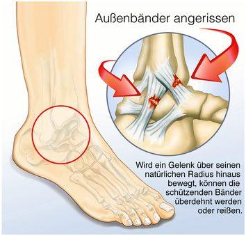 Zerrung oder Bänderriss am Sprunggelenk – was tun, wenn die Verletzung nicht heilt?