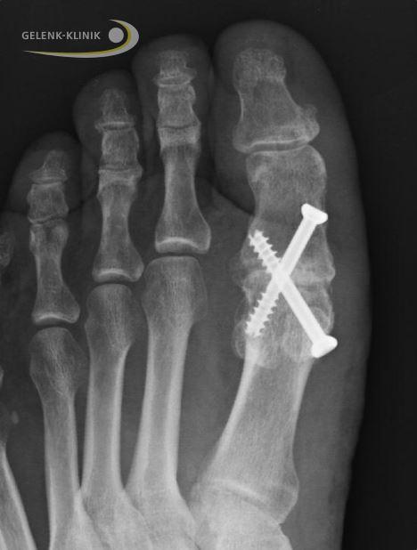 Heftiger Fußschmerz durch