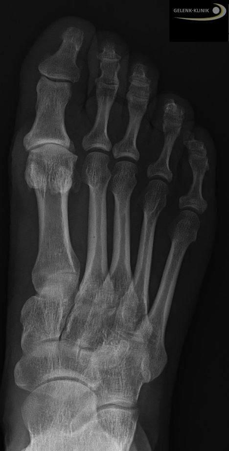 Hallux rigidus: Arthrose im großen Zeh