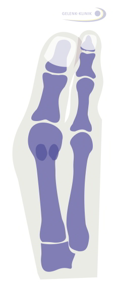 Mild hallux valgus interphalangeus: This is an isolated misalignment of the big toe beyond the metatarsophalangeal joint