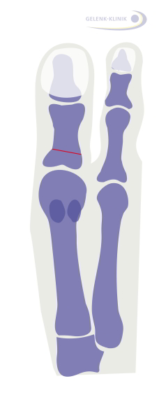 Akin osteotomy: The line along which the big toe was repositioned is marked in red. © Dr. Thomas Schneider, MD