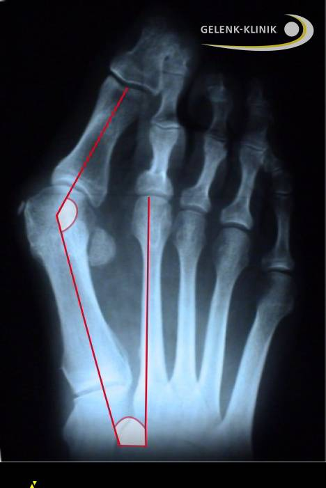 X-ray of a severe hallux valgus deformity: This x-ray shows the deformity of the sesamoid bones which no longer hold the big toe between them but instead lie next to them.