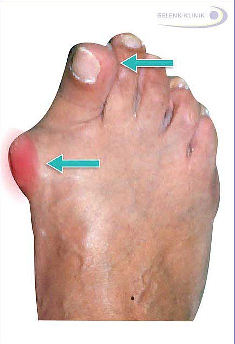 The deformity of the big toe and the resulting protrusion of the ball of the toe are the eponymous symptoms of hallux valgus © Dr. Thomas Schneider, MD