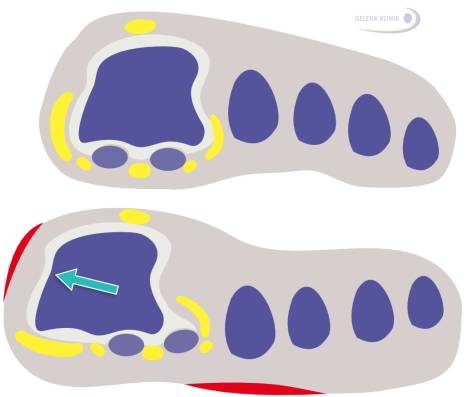 With hallux valgus, stress is shifted away from the painful big toe. This is called an insufficiency of the big toe. Instead, the smaller toes are carry more of the weight during roll-off whilst walking. This causes the pressure spots shown in red in this image - not only at the side of the metatarsophalangeal joint - but also at the sole and the balls of the smaller toes.