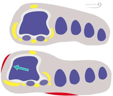 Com hallux valgus, o estresse é deslocado para longe do doloroso dedo adeus. Isso é chamado de insuficiência do dedo grande. Em vez disso, os dedos menores são transportados mais do peso durante o roll-off enquanto caminham. Isso faz com que os pontos de pressão mostrados em vermelho nesta imagem - não apenas no lado da articulação metatossofalângica - mas também na sola e nas bolas dos dedos menores.
