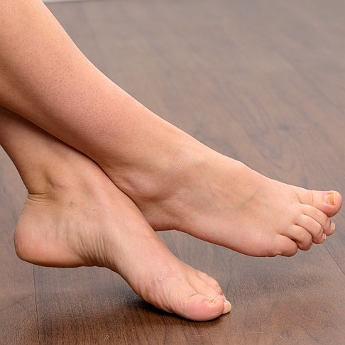 Fig. 3: Beautiful feet are the goal of all hallux valgus treatment.