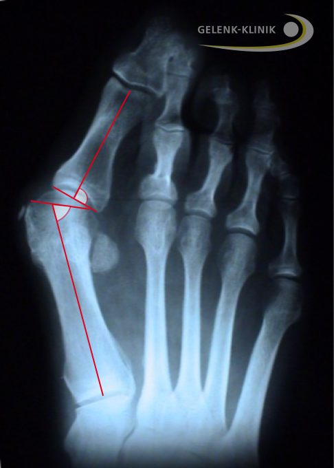 Foot with hallux valgus deformity
