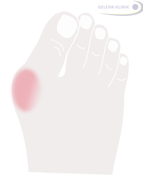 The hallux valgus (lat. for skewed toe) is a deformity in the big toe at the metatarsophalangeal joint: It is characteristic for the big toe to point outwards. Due to increasing conflict with the shoe, friction causes an inflammation of the bursa in the metatarsophalangeal joint, often followed by additional swelling.