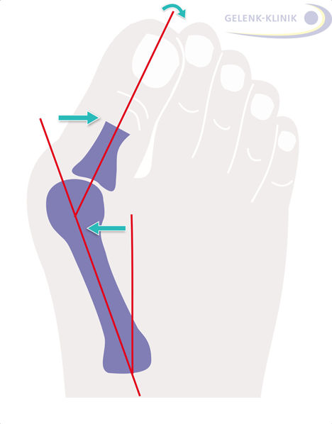 Fig. 1: Hallux valgus surgery corrects a misalignment of the big toe. Usually the bone in the big toe is corrected in conjunction with the correction of the soft tissue of the joint capsule of the metatarsophalangeal joint. © Gelenk-Klinik.de