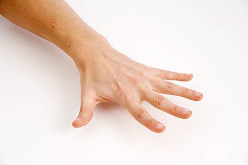 Lange sehnenscheide entzündet gips wie handgelenk Wie kann