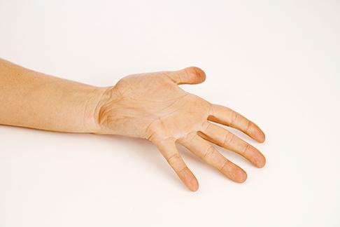 Wie lange op krank karpaltunnelsyndrom Hand