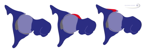 Bild: Impingement der Hüfte, Schema cam-impingement, pincer-impingement syndrom