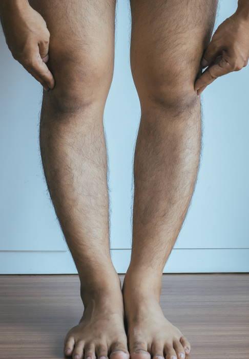 Beine werden nicht braun