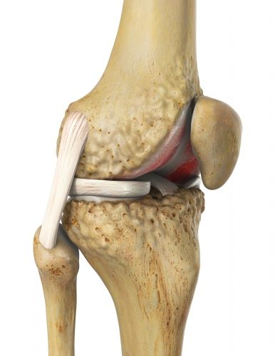 Retropatellare Arthrose oder patellofemorale Arthrose