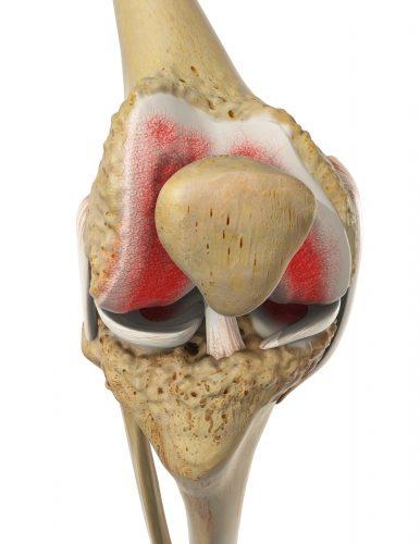 Kniearthrose: Gelenkerhalt bei Arthrose im Knie | Gelenk-Klinik.de