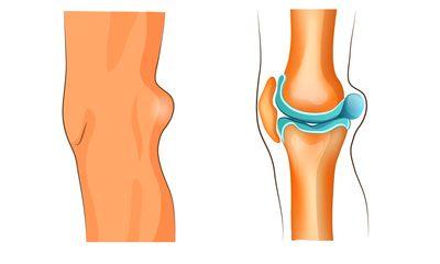 Symptome und wie man Kniesehnenentzündung behandelt