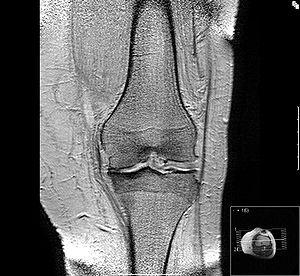 Knieschmerzen – Ursachen: Von Sport über Arthrose bis Zyste