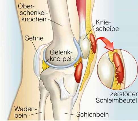 Entzündungen im Knie - Ursachen und Therapiemöglichkeiten