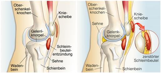 Neben knieschmerzen kniescheibe innen Knieschmerzen: Symptome