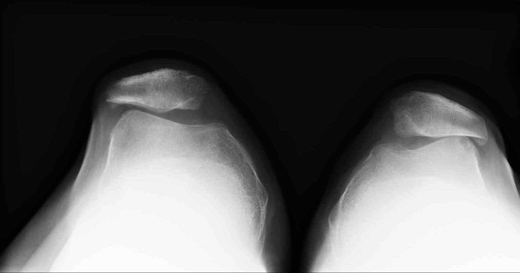 Дисплазия пателлофеморального сустава лечение бурсита локтевого сустава народными средствами