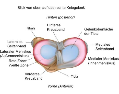 Meniskusriss: Diagnose, Therapie und meniskuserhaltende Operation ...