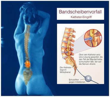 Arthrose der Knie Arthrose der Gelenke Unkovertebral′nyh Forum Symptome Behandlung folk
