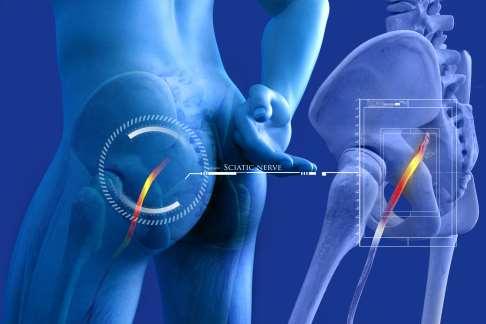 Nerv eingeklemmt steißbein Steißbeinschmerzen: Symptome,